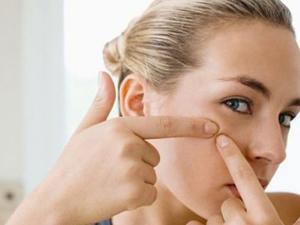 Как избавиться от жировиков на лице?