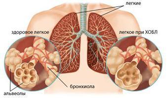 Самые распространенные заболевания легких и их лечение