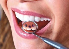 Безупречная улыбка, или стоит ли носить брекеты?