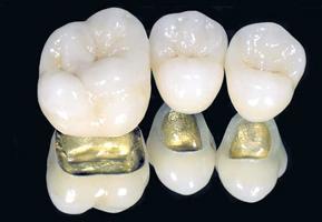 Преимущества металлокерамических коронок