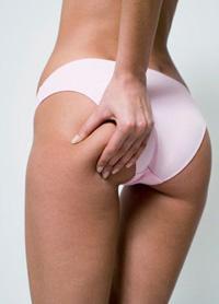 Целлюлит на бедрах: как избавиться? Упражнения против целлюлита на бедрах